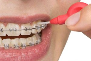 Ortodonta Toruń - leczenie wad zgryzu gabinet ortodontyczny